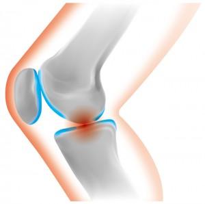 膝に水がたまる原因と対処法
